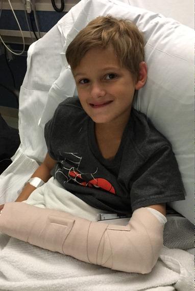 Kaleb with splint